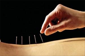 Kinesisk akupunktur